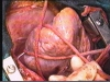 Off-pump CABG