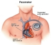 Pacemaker, artificial